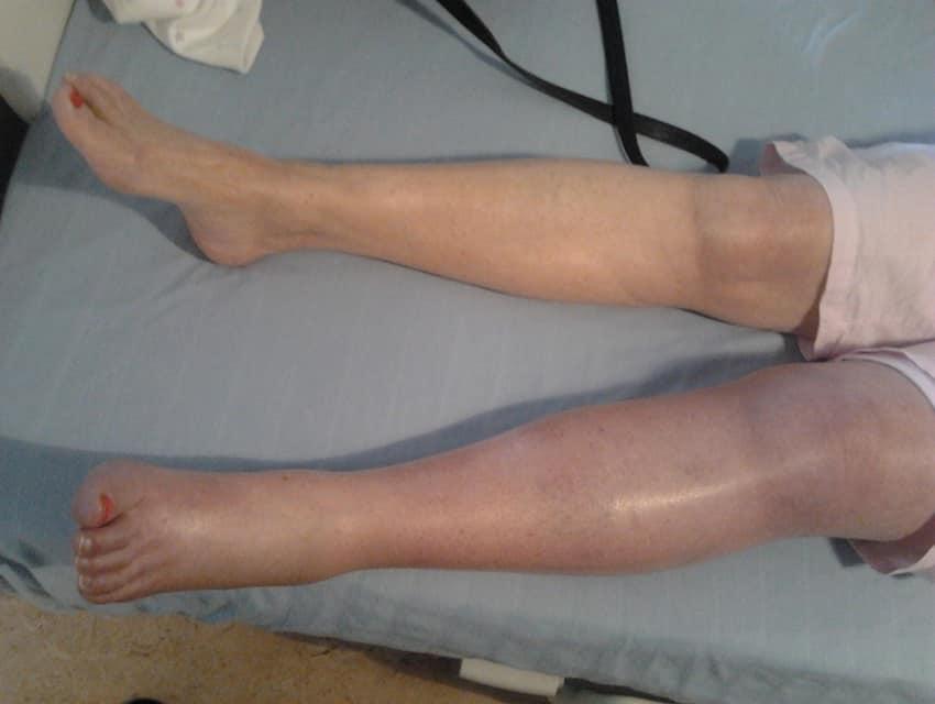 علائم آمبولی پا
