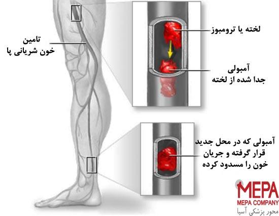 آمبولی پا چیست