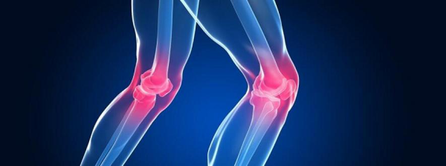 کنترل و درمان زانو درد از طریق کاهش تورم و التهاب با زانوبند طبی