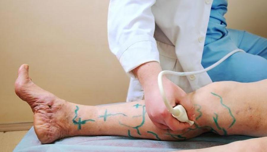 درمان واریس با سونوگرافی داپلر