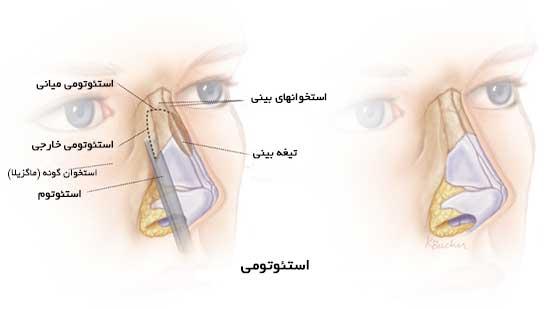 استئوتومی بینی