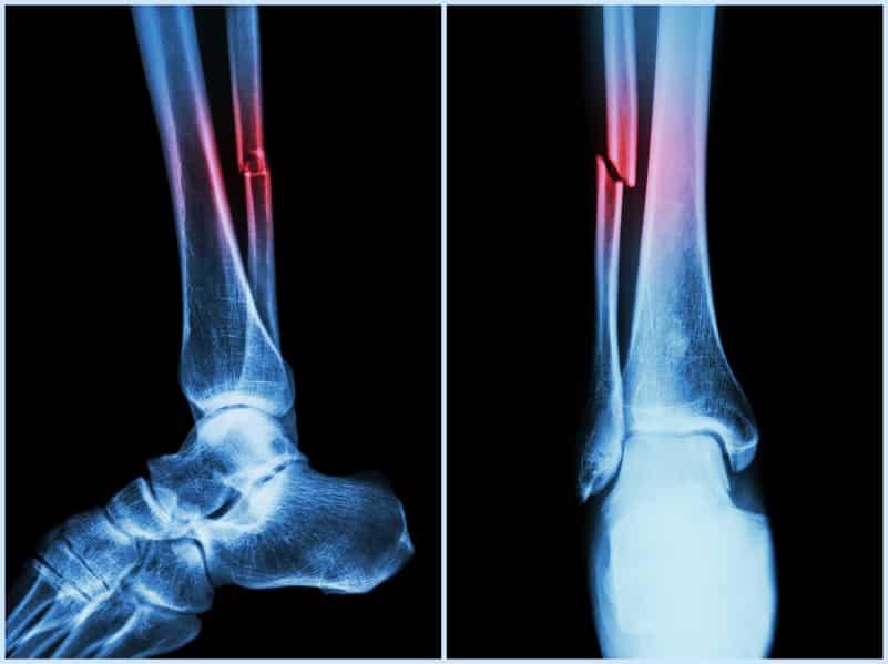 استخوان نازک نی یا فیبولا