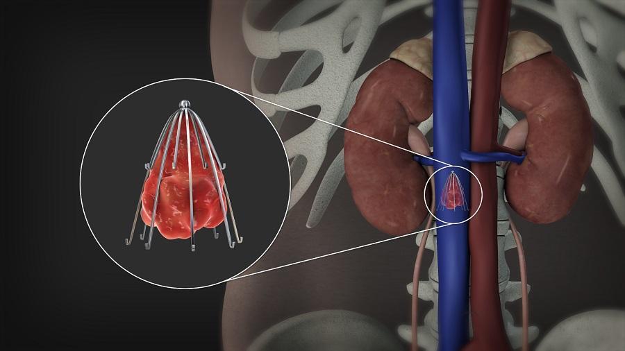 درمان دی وی تی با فیلتر