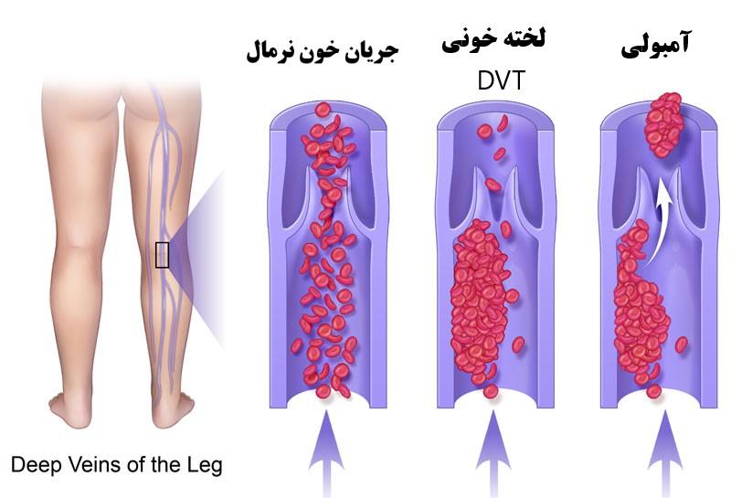 درمان DVT دی وی تی