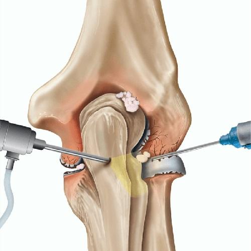 عمل جراحی آرتروسکوپی