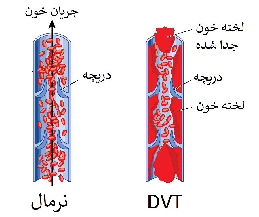 DVT چیست؟