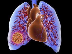 درمان آمبولی ریوی