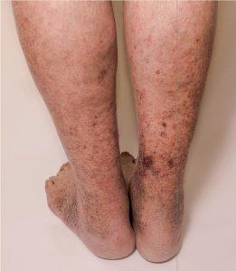 سندرم پس از ترومبوز
